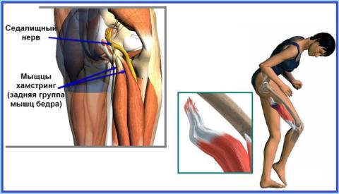 Последствия игнорирования лечения тендинита в хамстринг-области: воспаление седалищного нерва, отрыв сухожилия