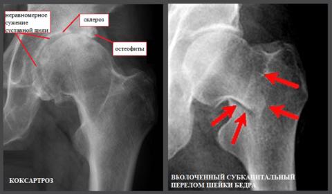Рентген левого тазобедренного сустава