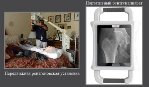 Сегодня рентгеновский снимок тазовой области можно сделать и в домашних условиях