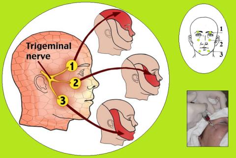 Точки для обезболивающей блокады двигательных ветвей тройничного нерва при БДВНЧС