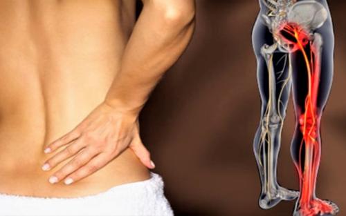 Боль, иррадиирующая в ногу, называется не артралгией, а ишеалгией или ишиасом