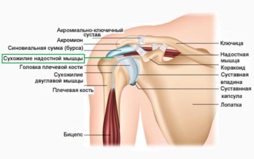 Главный фиксатор плече-лопаточного сочленения — сухожилие надостной мышцы