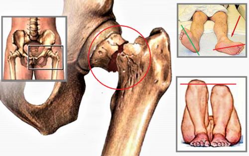 Характерные физикальные признаки перелома шейки бедренной кости