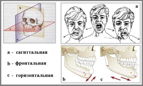 Плоскости, в которых возможны движения нижней челюсти и ВНЧС
