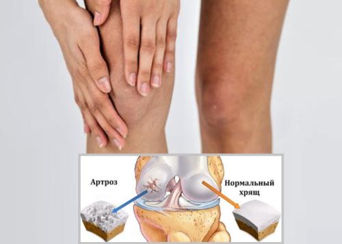 Крепитация, доносящаяся из сустава в сопровождении дискомфорта, может сигнализировать о начале артроза
