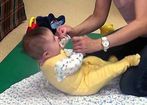У младенцев в норме могут хрустеть позвоночник, тазобедренные сочленения и колени