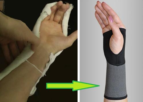 Одно из показаний для ношения эластичной разновидности поддержки сустава — период реабилитации после ношения гипсовой повязки